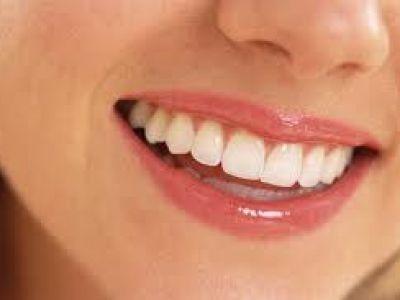 Trend na wybielanie zębów
